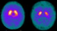 Ny norsk forskning kan gi Parkinson-svar