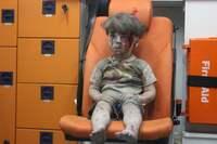 Alex (6) i brev til Obama:«Husker du gutten som ble hentet av ambulansen i Syria?»
